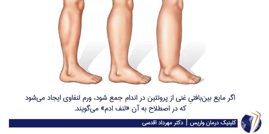 علل ماندن جای کش جوراب روی پاها: