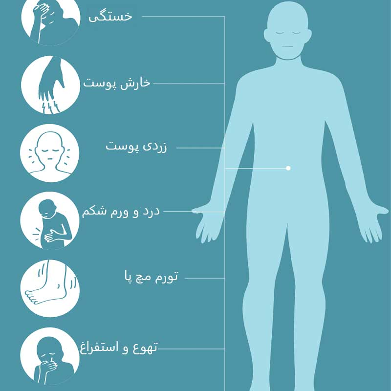 عوامل ایجاد کننده التهاب در کبد  چیست؟